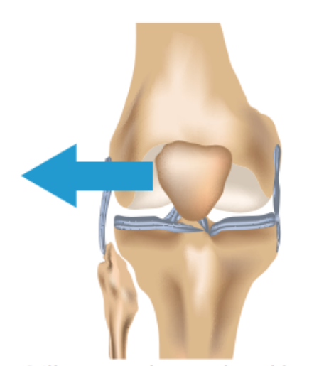 Knee Cap Tracking La Trobe Sport And Exercise Medicine Research Centre