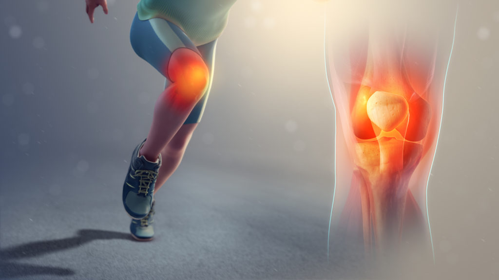 Knee Cap Pain Aged 18 50 Years La Trobe Sport And Exercise